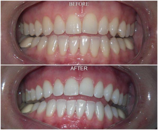 Dentist-San-Diego